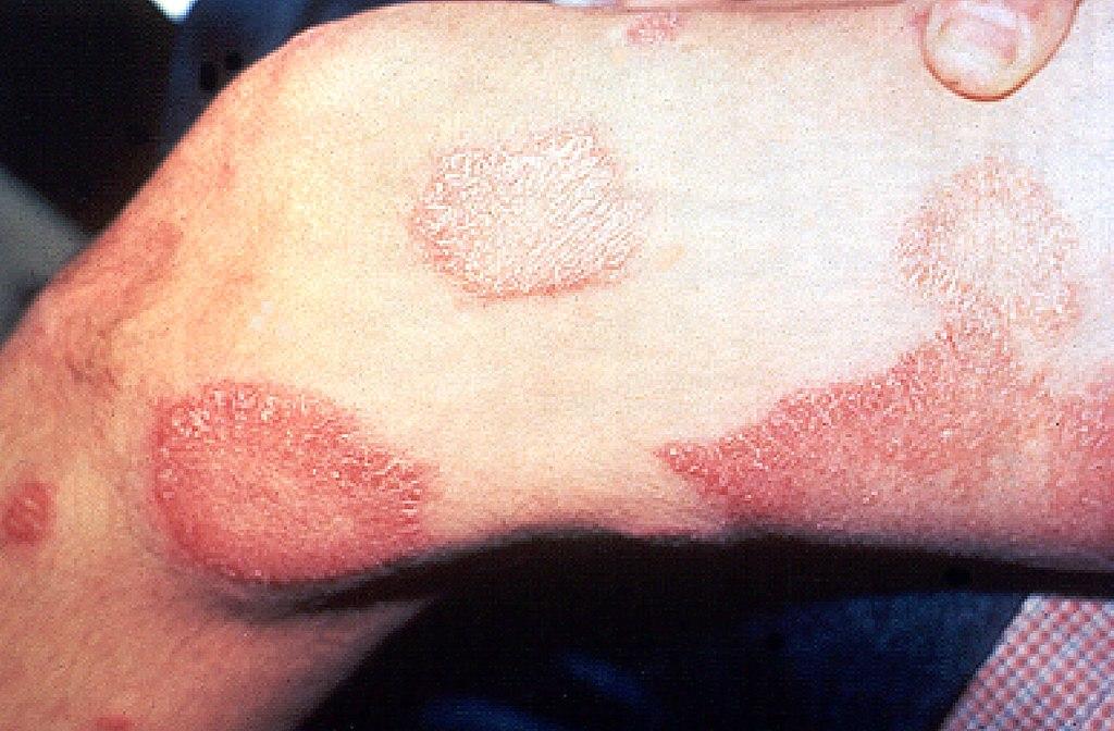 sintomas en la piel