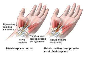 El síndrome del túnel carpiano