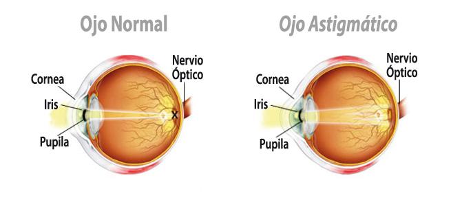ojo astigmatico